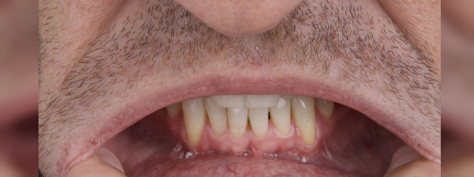 Spike in oral cancer patients in the country