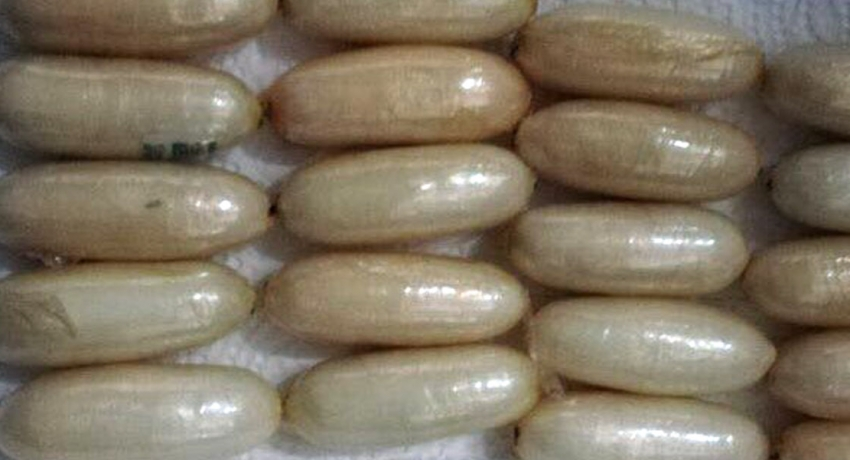 Fifty-two cocaine capsules retrieved from an abdomen of 52-year-old
