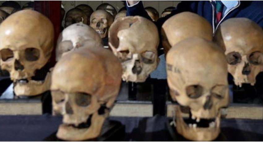 200 year old human skulls make their way back to Sri Lanka from Edinburgh University