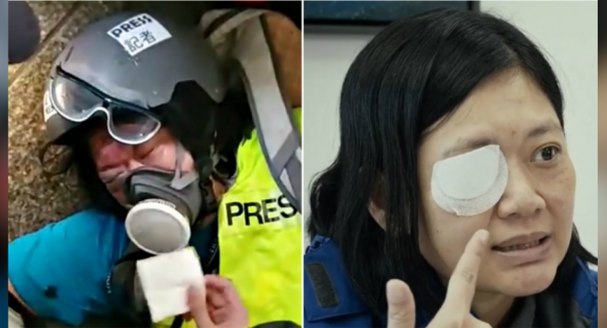 Image result for INDONESIAN JOURNALIST SEEKS JUSTICE AFTER LOSING EYE