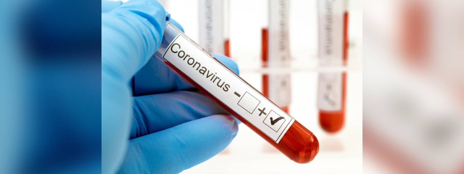 Four private hospitals to conduct testing for COVID-19