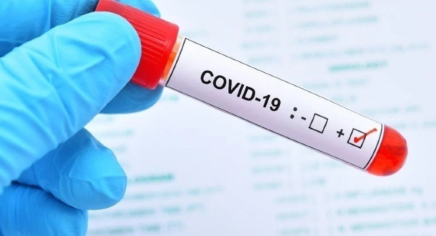 PCR & Rapid Antigen Tests to detect COVID-19 cases in Colombo