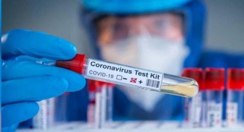 Concerns raised over imported Rapid Antigen Test kits