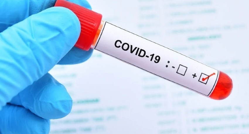COVID TESTS AT W/PROVINCE EXITS DETECT 16 PATIENTS