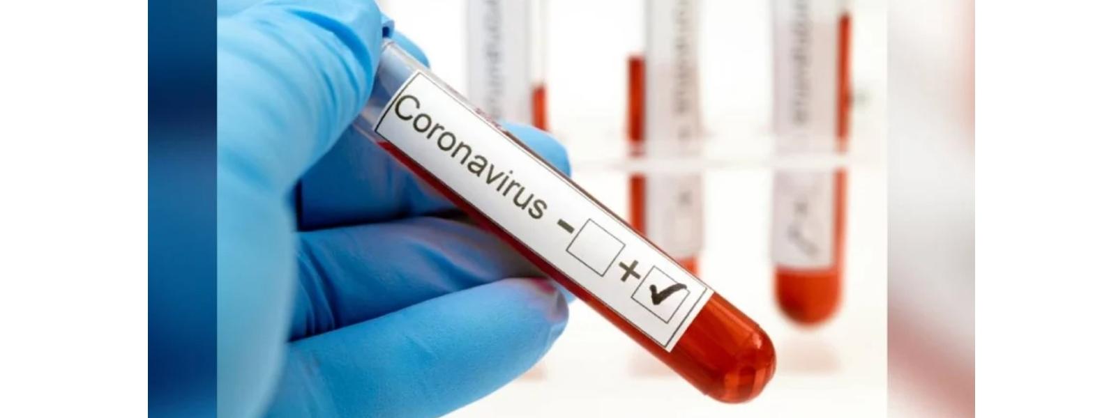 COVID-19 TESTS AT WP EXIT POINTS: DIG AJITH ROHANA
