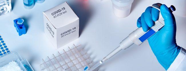Control Price for PCR & Rapid Antigen tests –  Lasantha Alagiyawanna