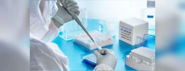 මෙරට තුළ PCR පරීක්ෂණ 171,169 ක්..