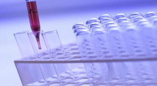 தனியார் ஆய்வுக்கூடங்களுக்கு PCR பரிசோதனை மாதிரிகளை அனுப்புவது அநாவசிய சிக்கலைத் தோற்றுவிக்கும் என எச்சரிக்கை