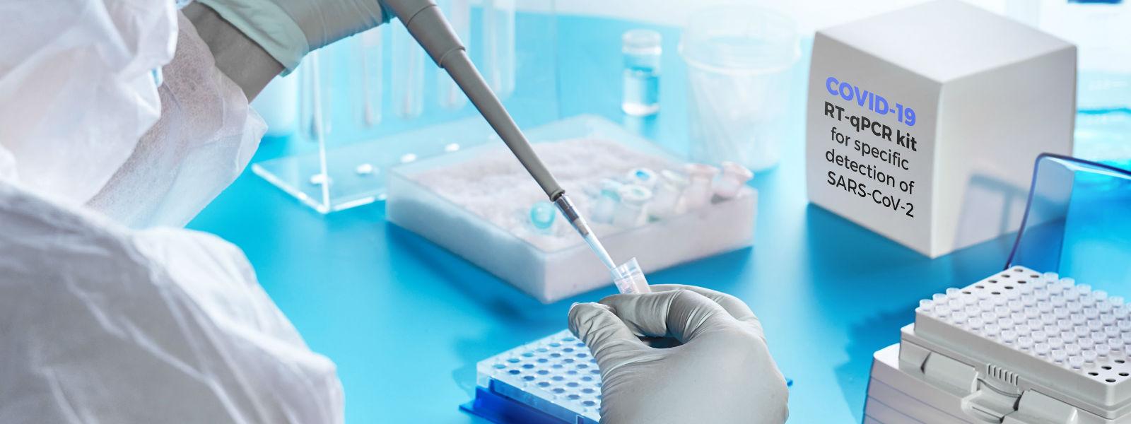 பாராளுமன்ற உறுப்பினர்களுக்கு PCR பரிசோதனை