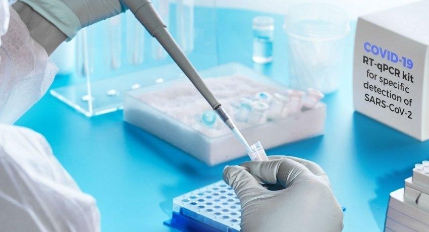 பாராளுமன்ற உறுப்பினர்கள், ஊழியர்களுக்கு PCR பரிசோதனை