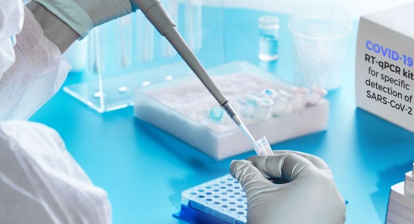 PCR பரிசோதனை அறிக்கையில் தாமதம்